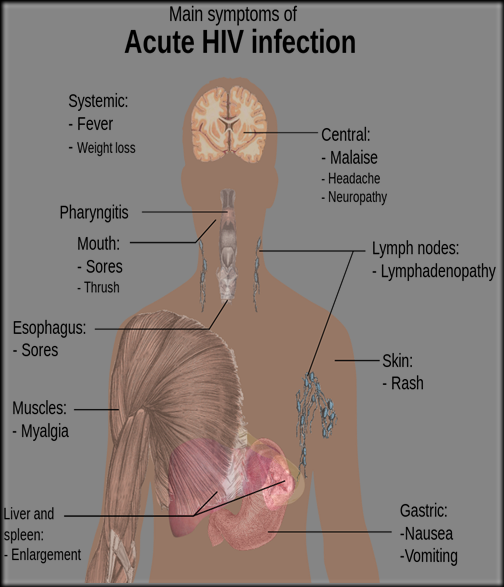 1024px-Symptoms_of_acute_HIV_infection.svg