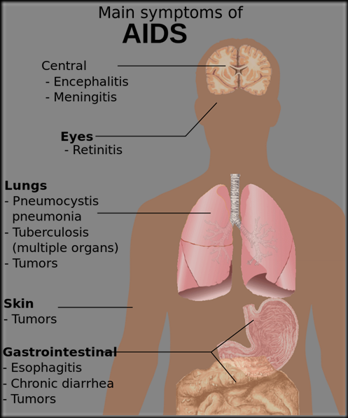 800px-Symptoms_of_AIDS.svg