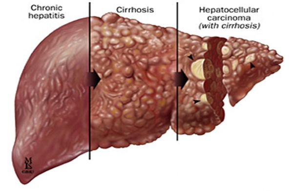 Hepatitis caused by primary or recurrent HSV can sometimes develop into a life-threatening condition called fulminant liver failure 3