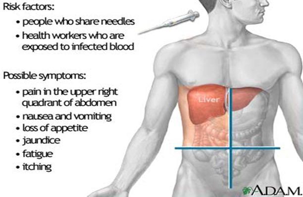 hepatitis_liver_pic