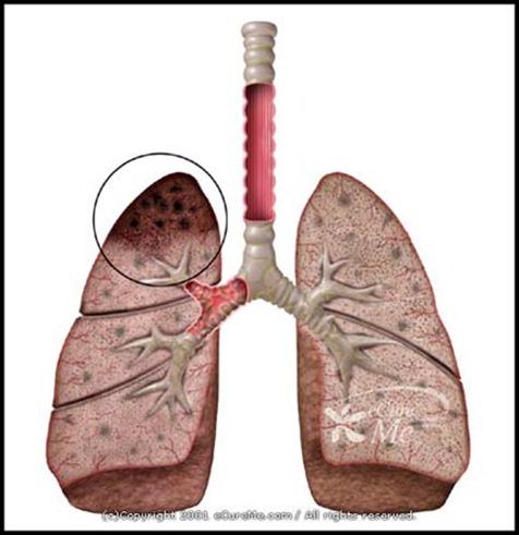 Tuberculosis550_ab
