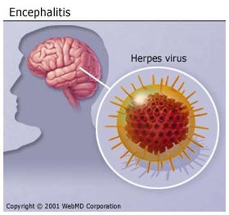 viral-encephalitis-15997_0